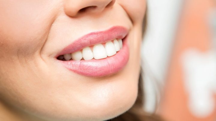 3 Benefits to Cosmetic Dentistry